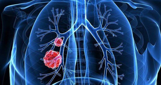 Исследование определяет подтипы мелкоклеточного рака легких и различные терапевтические уязвимости для каждого типа